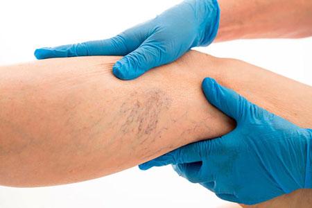 Tratamiento de varices en mmc fisiocenter